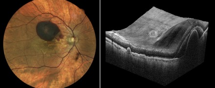 RPE-tears-fundus-optovue